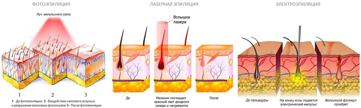 epilyaciy1