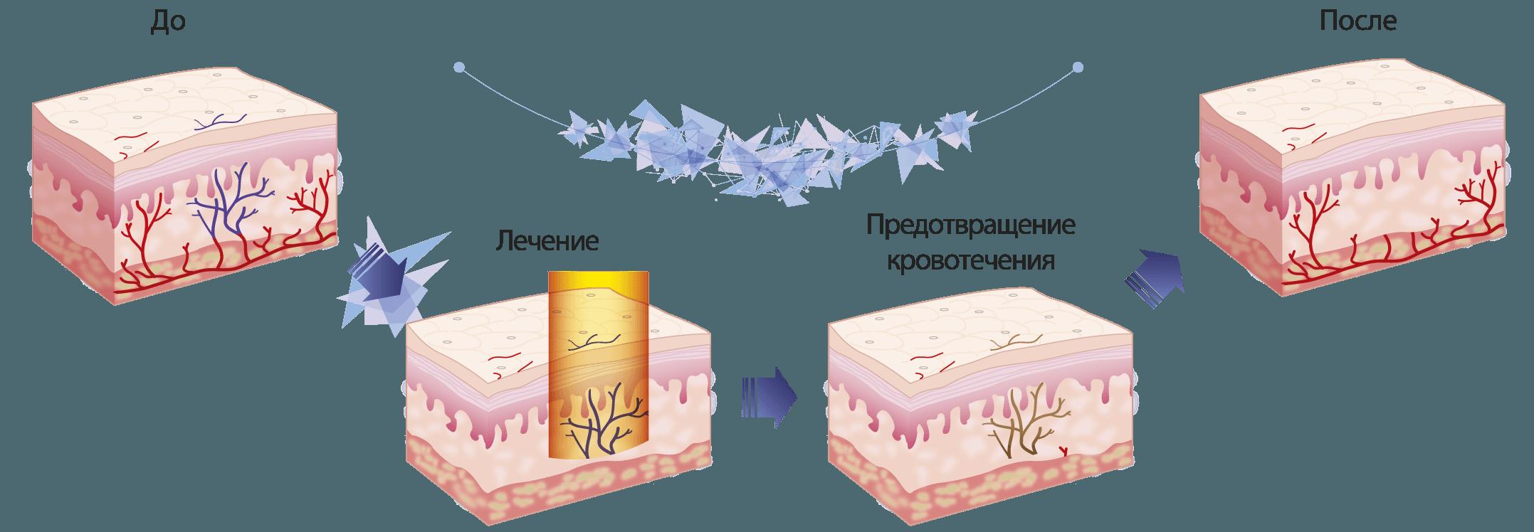 lazernoe ydalenie (1)