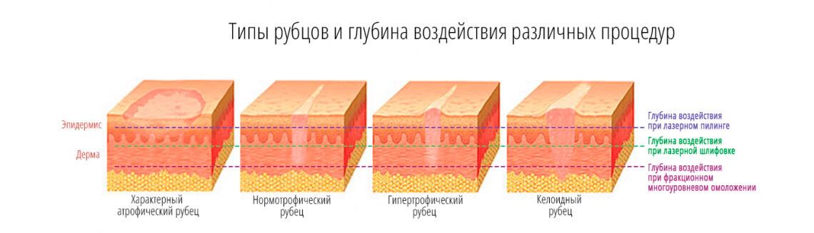lazernoe ydalenie (2)